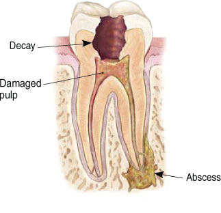 A diagram of a tooth that has decay and damage from an infection.