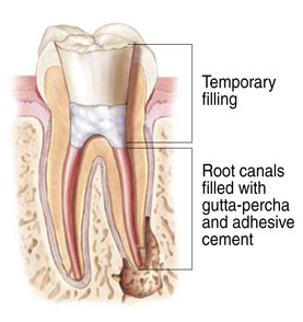A diagram of the tooth after a <span itemprop='name'>root canal</span> has cleaned out the infection and placed a filling.