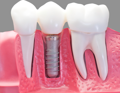 A diagram of the dental implant and prepared teeth now having new crowns on them.