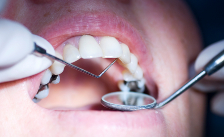 Person getting fillings at Dougherty Dental