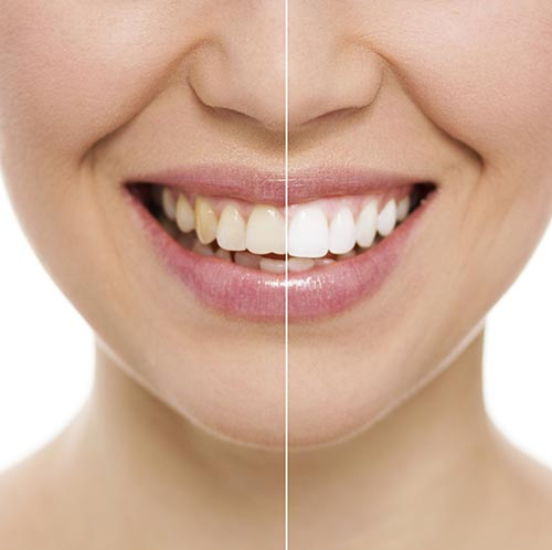 A patient showing her teeth before and after a teeth whitening treatment.