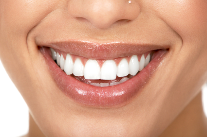 A patient showing her new beautiful porcelain veneers.